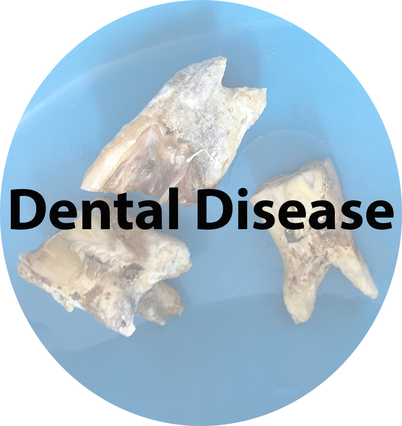 Dental Disease(1).jpg